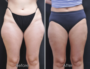 get-rid-of-saddlebags